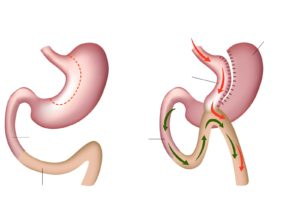 Mini-Gastric-Bypass