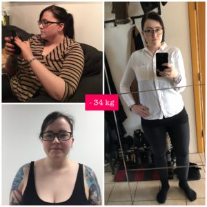 Before and after bariatric surgery in Tallinn
