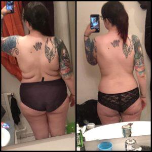 ennen ja lihavuusleikkauksen jälkeen